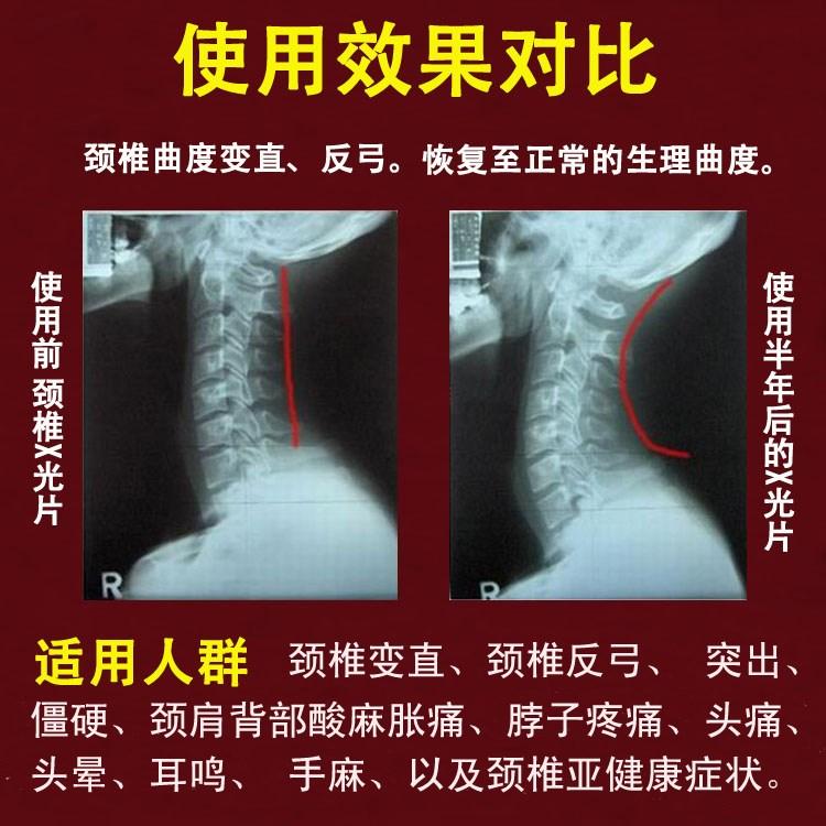 Hipertermia toro rigidez vertebral la almohada almohadas handguard adultos sanos de calefacción almohada almohada cervical de fisioterapia de reparación
