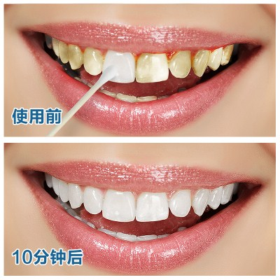 Tooth stains teeth dental fluorosis teeth whitening soda powder Ivory artifact available to yellow teeth whitening