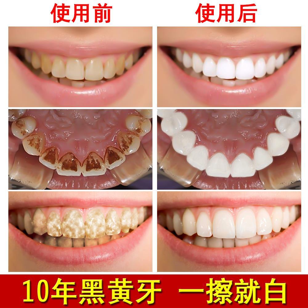 pulver av bikarbonat blekte tänderna tandkräm tillgängliga till gula tänder kalkyler bort fläckar som hos vuxna