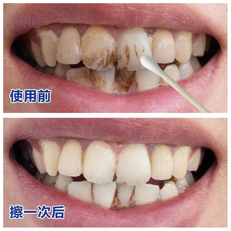 Reinigung der zähne sauber dieser Schwarze zähne putzen gelbe zähne, eine Weiße plakette salben whitening agent ein Paket post netto - zähne