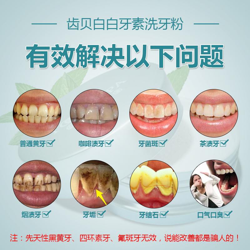 hampaat, hampaat) simpukoiden hammas turhaan. keltaiset hampaat valkaisu mennä tupakkatahroja tahroja hampaat hengityksen lisäksi haisee